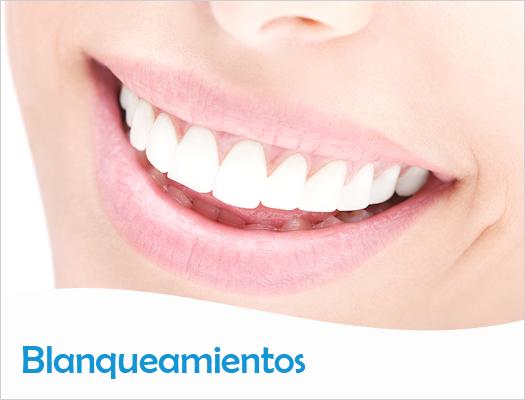 Estética Dental - Blanqueamientos
