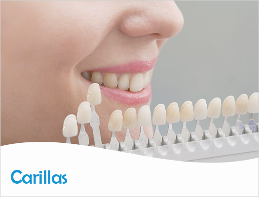 Estética Dental - Carilla