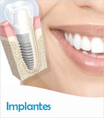 Servicios Odontológicos